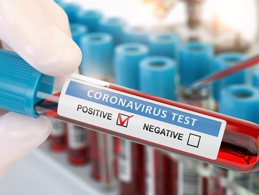 Ist Der Corona Test Kostenlos